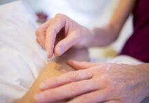 Jak działa akupunktura? Jest to zabieg polegający na wbijaniu cienkich igieł w skórę pacjenta.