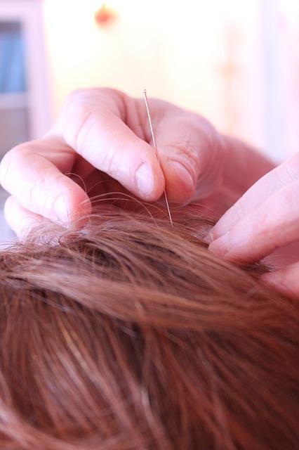 Akupunktura obejmuje tysiące punktów na ciele człowieka, dlatego należy wybrać się na nią do specjalisty.